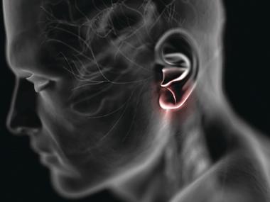 Складка на ухе - возможна закупорка артерий