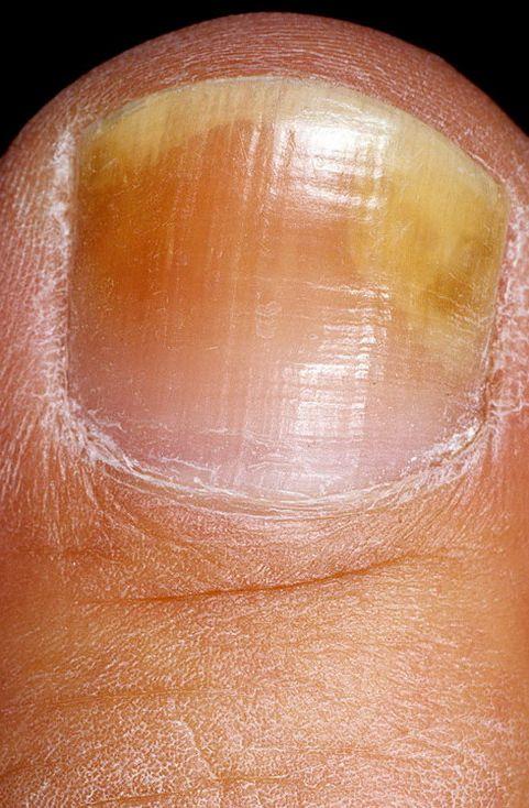 При какой температуре погибает грибок на коже