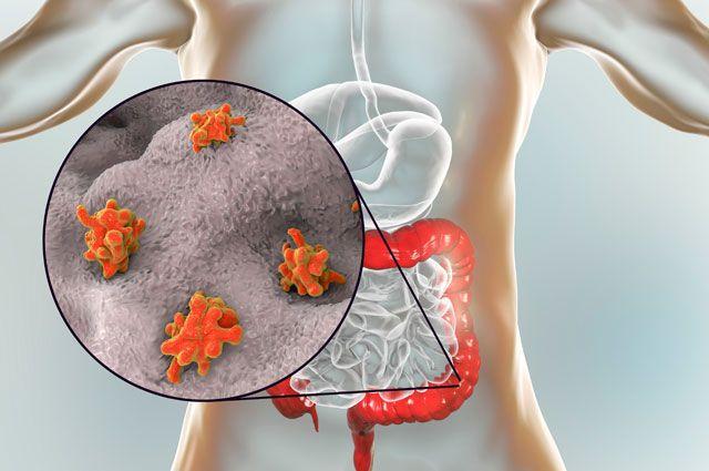 Твари в голове и теле. Куда в нашем организме могут проникнуть паразиты?