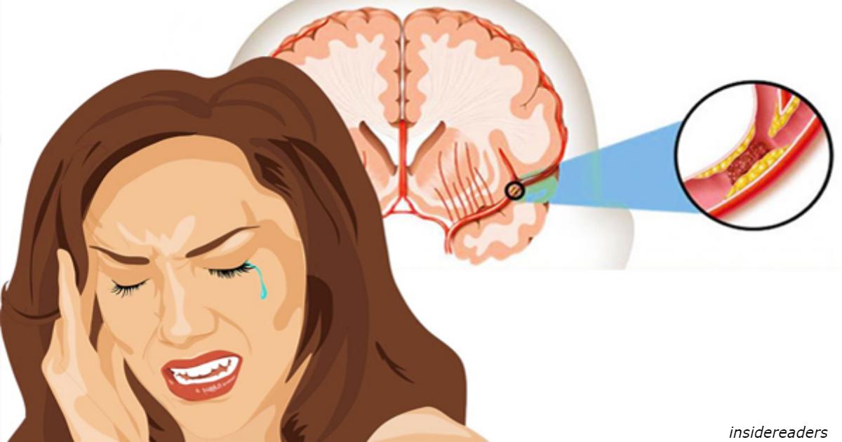 10 признаокв, что вы уже пережили ″тихий инсульт″ — и худшее еще впереди