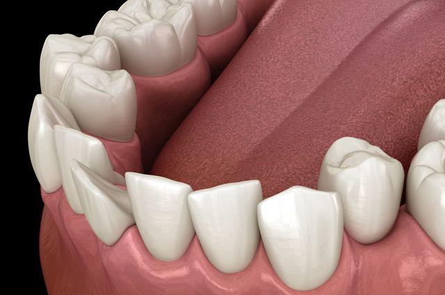 Чем опасна скученность зубов