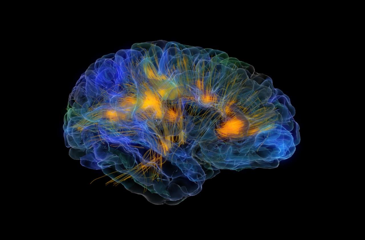 «Интеллектуальный инсульт»: как лишние знания нас отупляют
