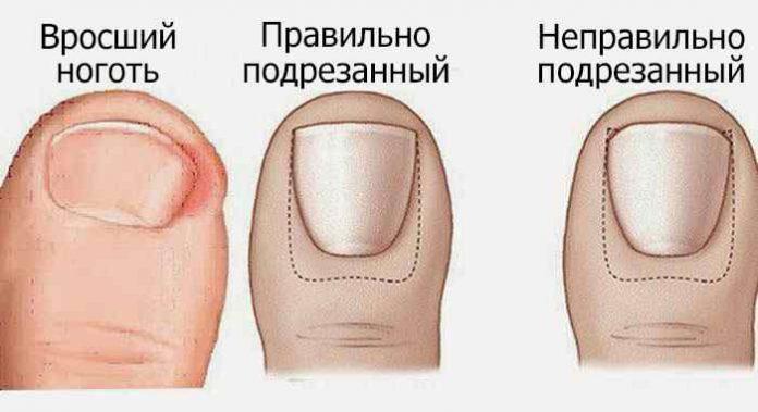 Натуральное домашнее средство для лечения вросших ногтей на ногах