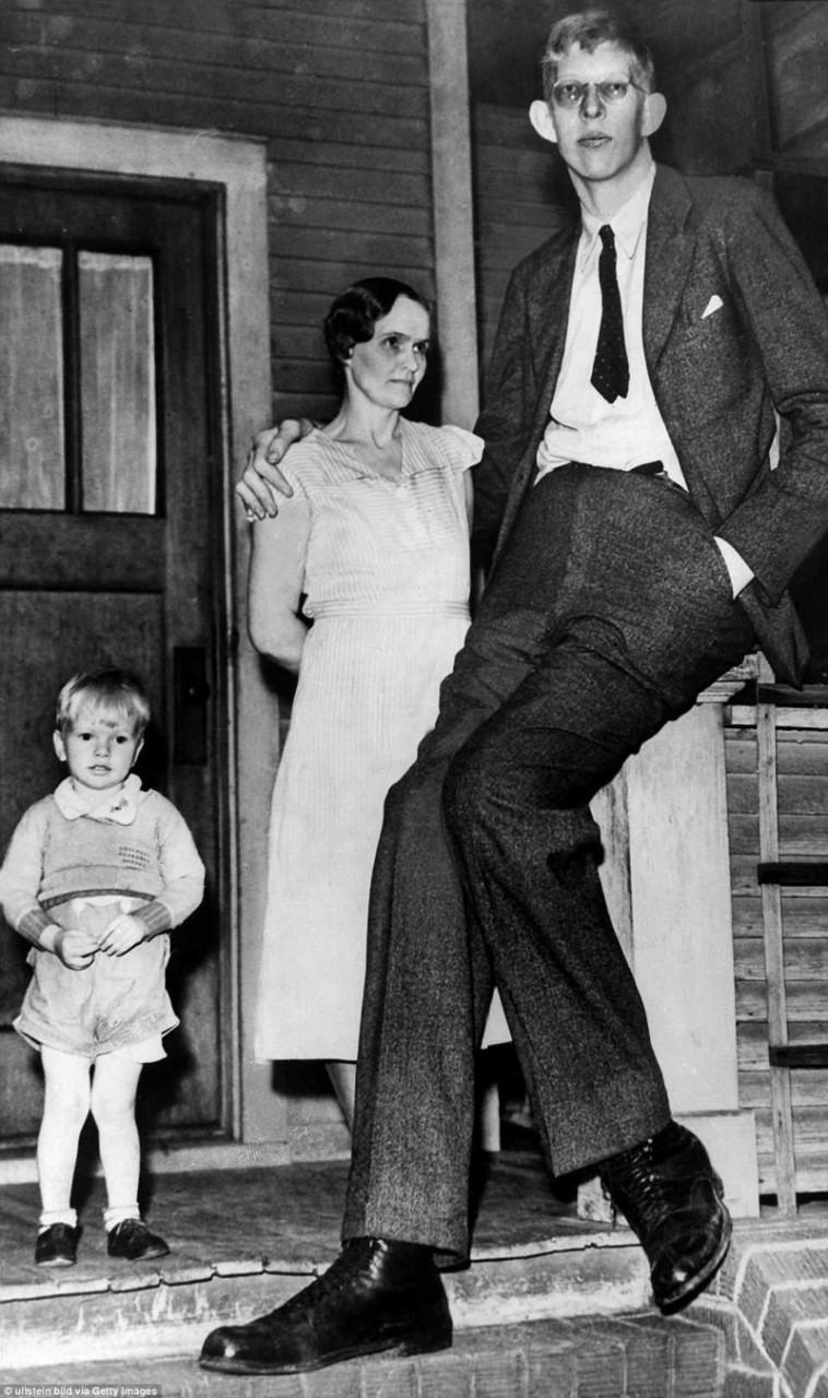 Роберт в возрасте 17 лет, с матерью и братом, 1935 г. акромегалия, великан, опухоль, рекорд, рекорд гиннесса, рекордсмен Гинесса, самый высокий, самый высокий человек