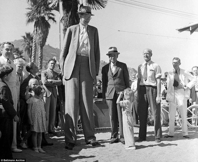 Чтобы разглядеть самого высокого человека мире, малышке понадобился театральный бинокль! акромегалия, великан, опухоль, рекорд, рекорд гиннесса, рекордсмен Гинесса, самый высокий, самый высокий человек