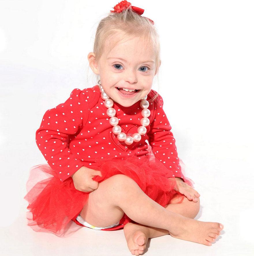 2-летняя девочка с синдромом дауна выиграла контракт с модельным агентством благодаря своей обаятельной улыбке