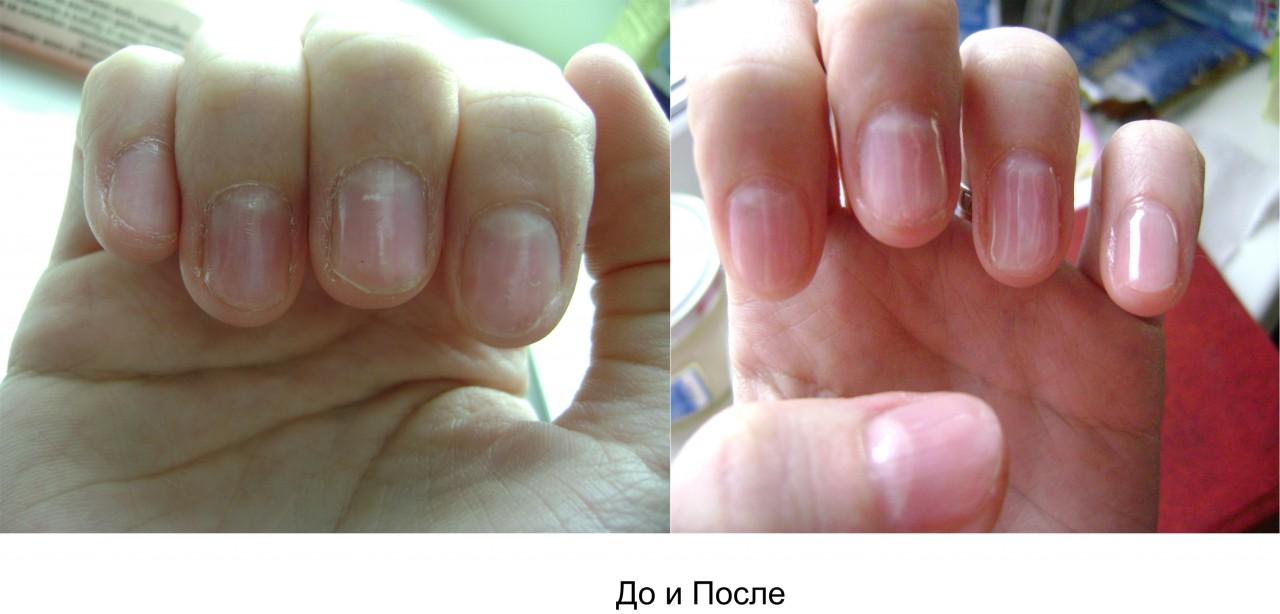 Ногти укрепление гелем