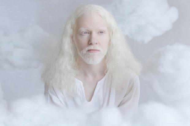 albinos_1