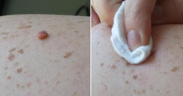 Нитевидные бородавки папилломы народные способ лечениячение-удаление фото
