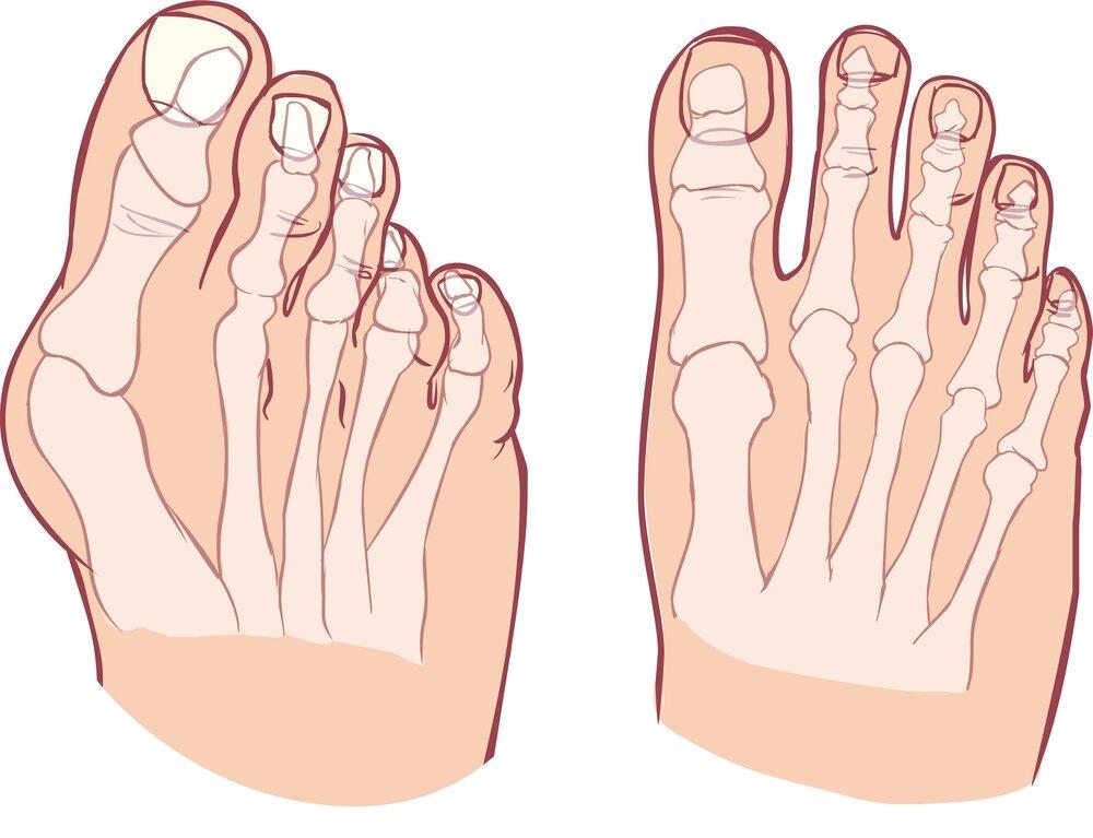Можно ли избавиться от косточки на ноге без операции?