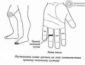 СУ-ДЖОК-ТЕРАПИЯ