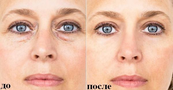 Как избавиться от отека глаз