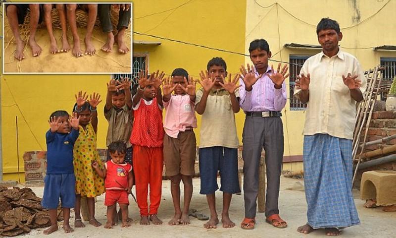 Индус не может выдать дочерей замуж из-за лишних пальцев