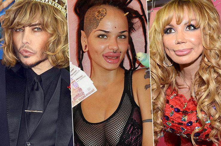 Утиные истории: знаменитости, которые переборщили с пластикой губ