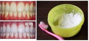 Сода и зубы - фото до и после
