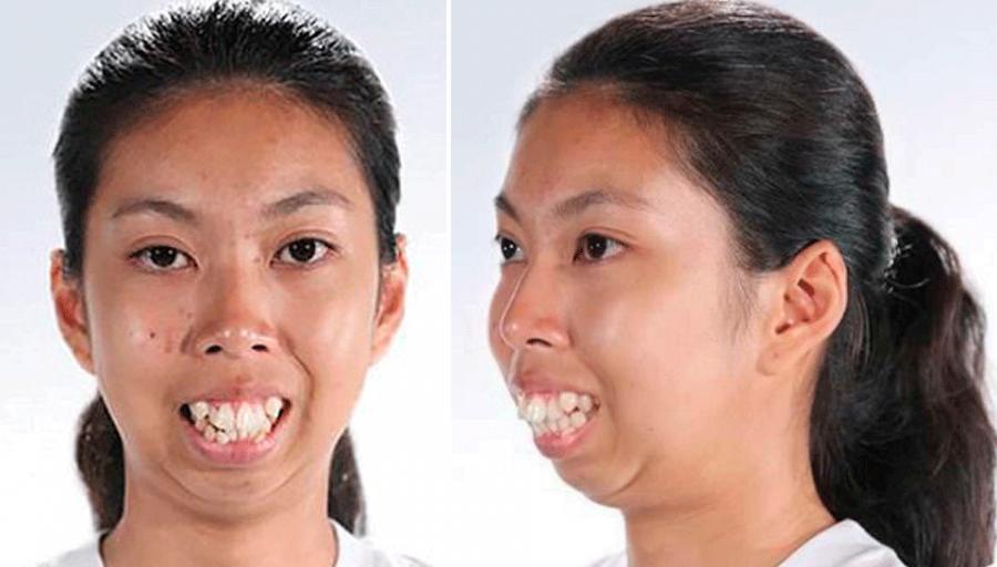 Торчащие зубы и выпирающая челюсть мешали ей жить. Но вот как она выглядит теперь!