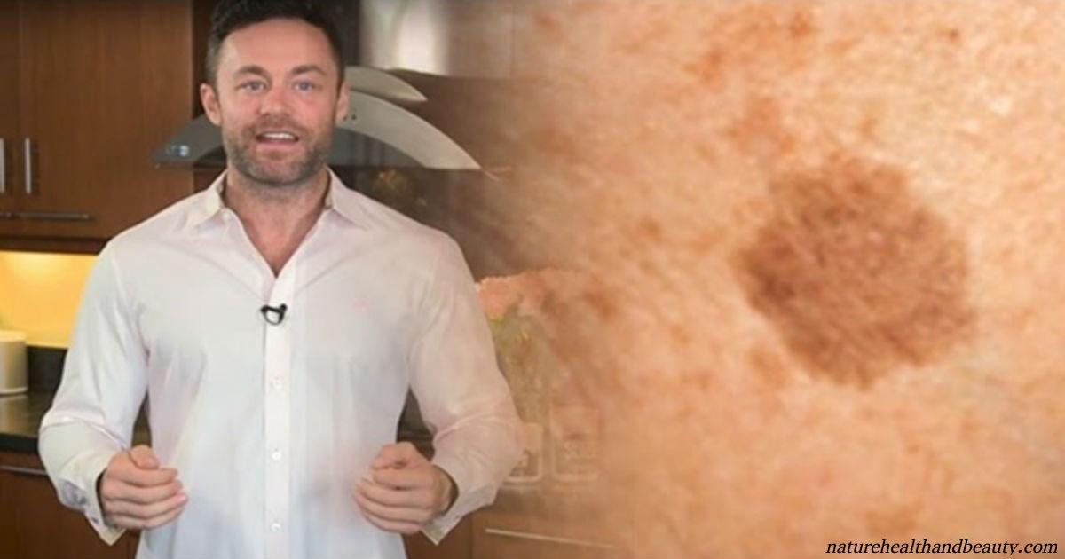 Дерматолог: Есть только 1 способ избавиться от коричневых пятен на коже