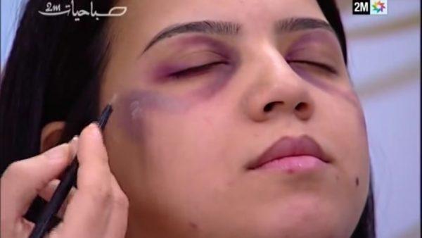 В сети осудили телеканал, научивший женщин правильно скрывать следы побоев