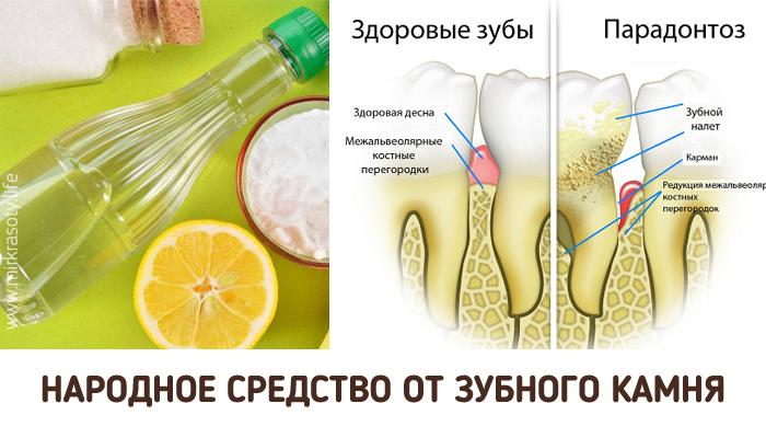 Чем вылечить зубной камень в домашних условиях