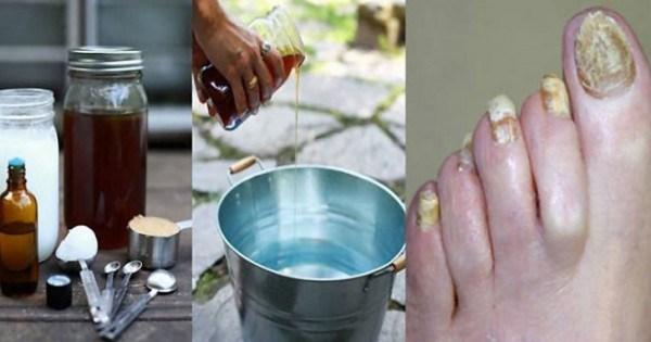 Это простое 2-компонентное средство навсегда избавит от грибка ногтей