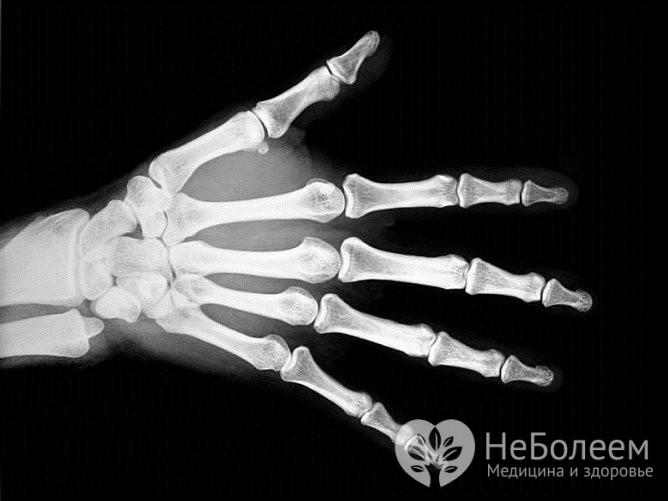 Для того чтобы исключить перелом, проводится рентген травмированной кисти