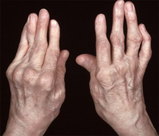 Лечение ревматоидного артрита народными методами