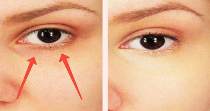 Нанесите обычную пищевую соду под глаза, и результат вас приятно удивит