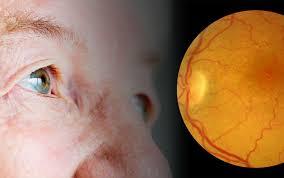 Причина слепоты у пожилых людей