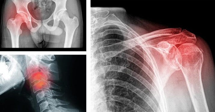 9 типов боли, которые связан…