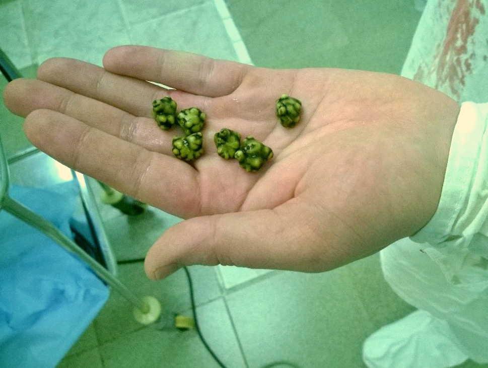 Как простым рецептом полностью очистили желчный пузырь от камней всего за 2 недели!