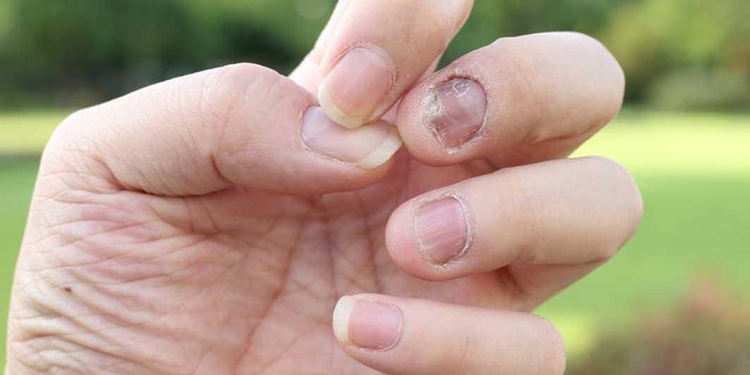 Как я вылечила ногтевой грибок