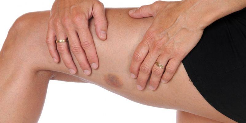 Почему появляются синяки на теле без причины