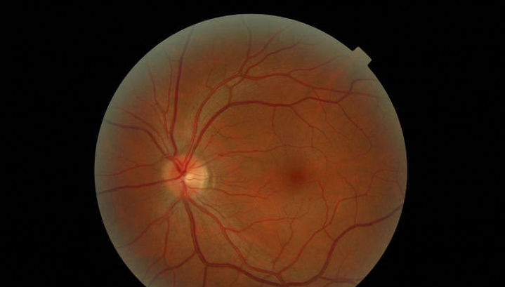 Российские учёные вырастили из перепрограммированных клеток сетчатку глаза человека для пересадки