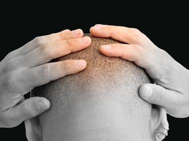Облысение макушки головы - возможна закупорка артерий