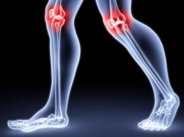 Почему хрустят суставы. Что мы должны об этом знать? | Кинезио (Харьков)