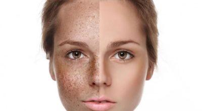 Тусклый цвет кожи: главные причины