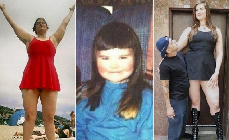 Одноклассники дразнили ее, когда в 12 лет ее рост достигал 190 см. Только взгляни на нее сейчас...