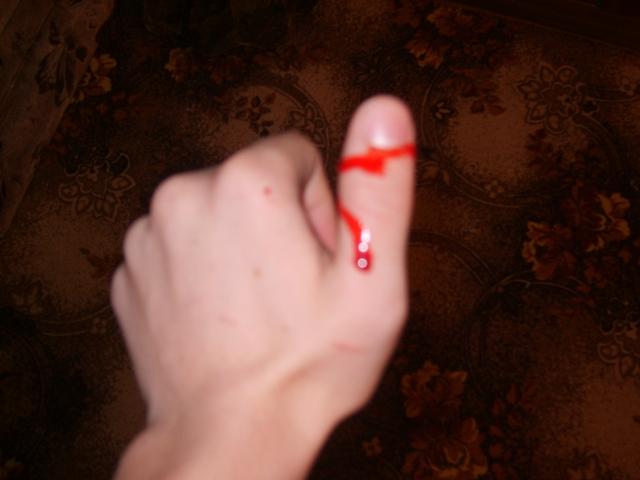 Как остановить кровотечение из мелких сосудов?