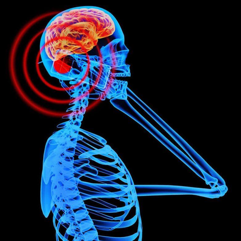 Как мобильные телефоны могут вызывать опухоли головного мозга и хронические заболевания