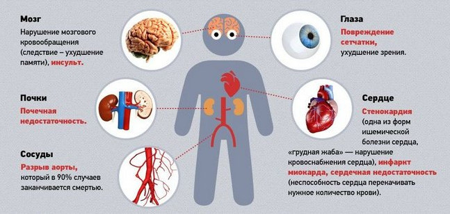 10 рецептов лечения гипертонии. Снижаем давление безопасно и без вреда для организма