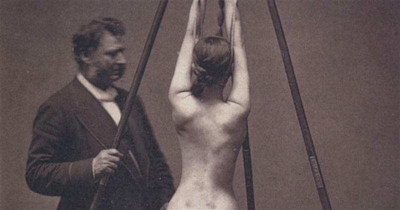 18 одновременно пугающих и завораживающих фотографий медицины прошлого