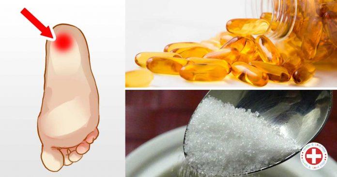 10 природных методов для снятия боли в пятке