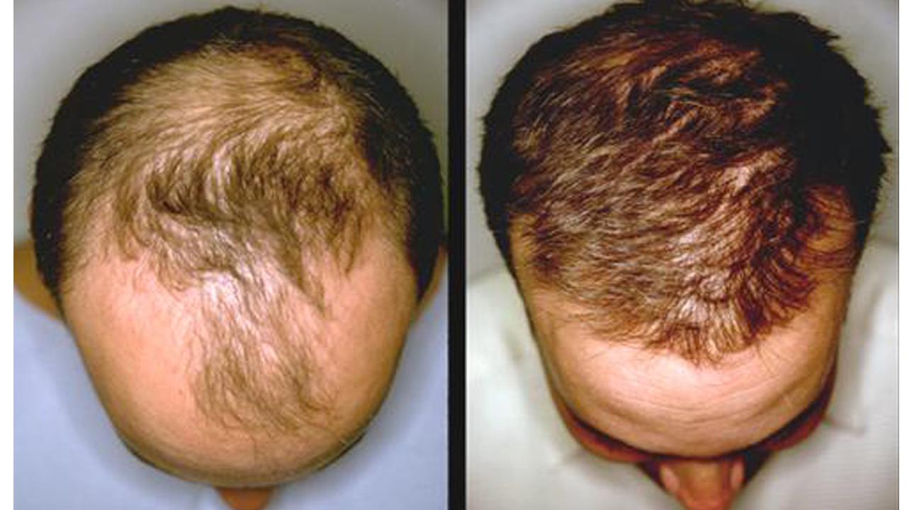 Копеечное средство для бешенного роста волос