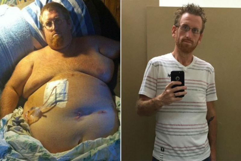 Американец думал, что лишний вес убьет его, записал предсмертное видео, а потом взял и похудел на 160 кг