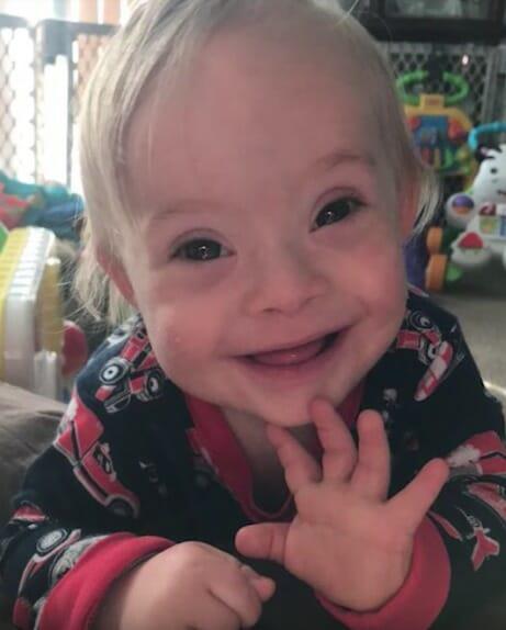 Лукас с синдромом Дауна стал новым лицом компании Gerber. Его очаровательная улыбка растопит ваше сердце!