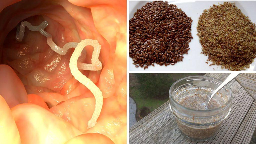 Как узнать, есть ли у вас кишечные глисты