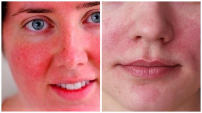 Как спасти обветренную кожу губ и лица