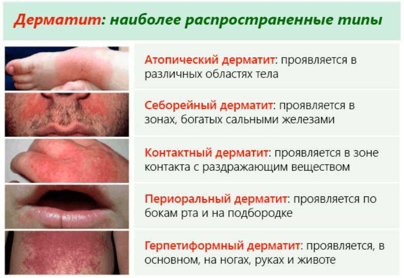 Будет эффективно бит надоевший дерматит - рецепты народные, у врачей немодные. А людям излечиться помогают!