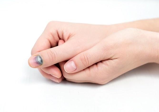 Ушиб ногтя на руке: симптомы, первая помощь, лечение