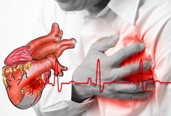 Как выжить при сердечном приступе, когда вы один